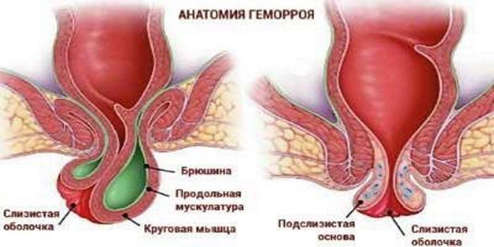 Кровь у беременной в заднем проходе 66