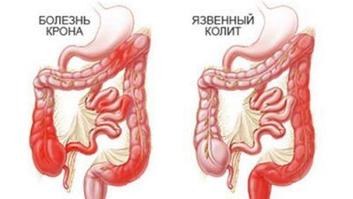 Колит кишечника симптомы у беременных