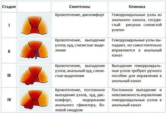 Геморроидальные узлы в зависимости от стадии геморроя