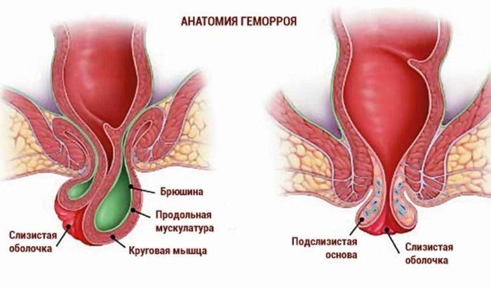 Анатомия геморроя при беременности