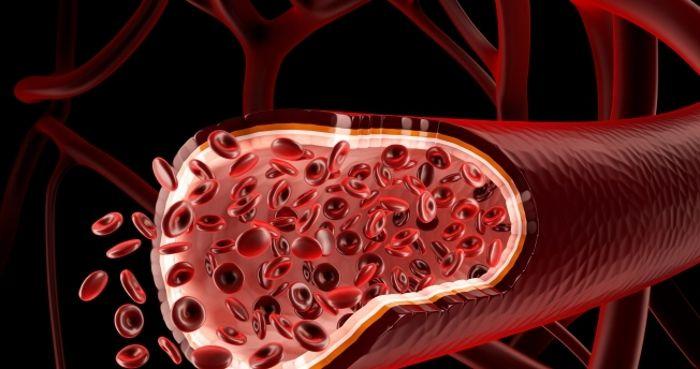 Варикозное расширение геморроидальных вен
