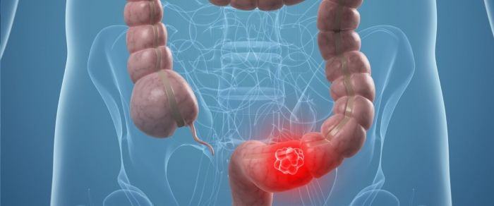 Воспаление прямой кишки - геморрой