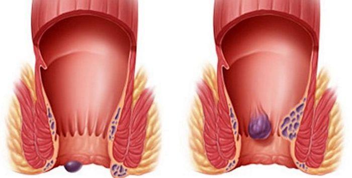 Геморроидальные узлы при внутреннем и наружном геморрое