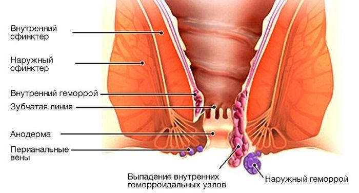 Геморрой при беременности кровит
