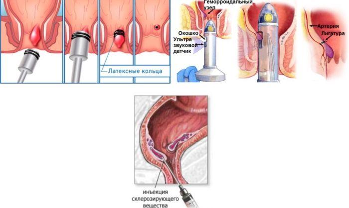 дезартеризация геморроидальных узлов