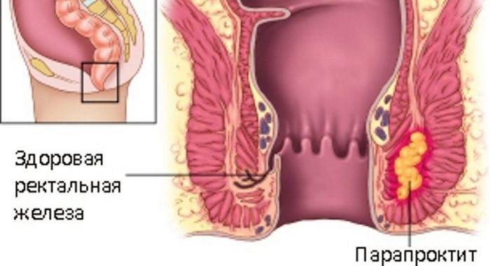 Геморрой признаки фото причины симптомы и лечение у