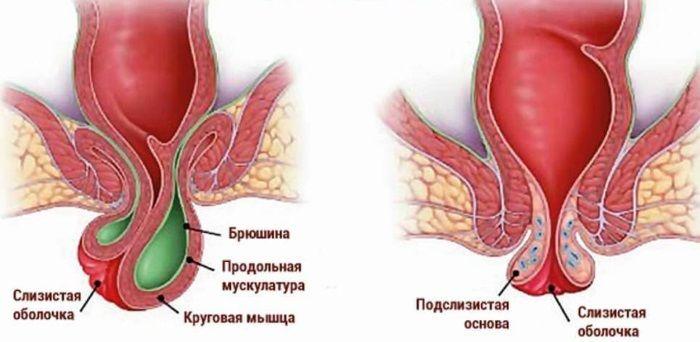 Геморрой без кровотечения и боли