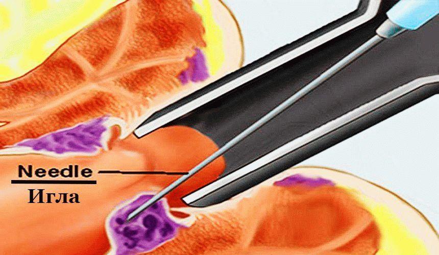 Склерозирование геморроидальных узлов