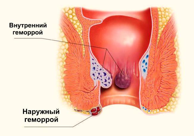 Профилактика и лечение мокнущего геморроя. Что такое мокнущий геморрой и почему требуется его срочное лечение?