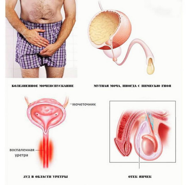 лечение геморроя с кровью лекарства