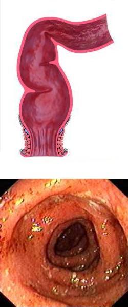 Сигмовидная кишка: где находится и как болит