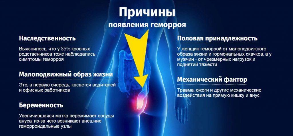 Геморрой: причины возникновения заболевания