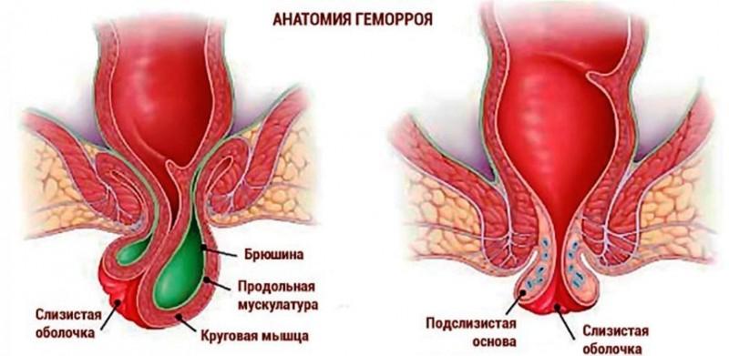 Фото, особенности протекания и лечения всех стадий и разновидностей геморроя