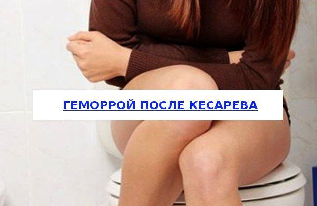 Геморрой после кесарева: причины, симптомы, опасность, лечение геморроя после кесарево медикаментозное, народное, профилактика